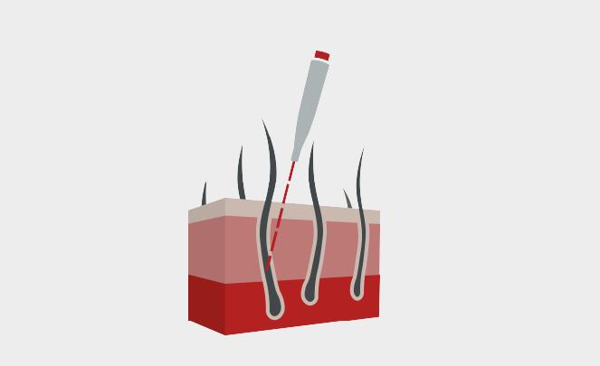 Hautblockbild Haarentfernung 3